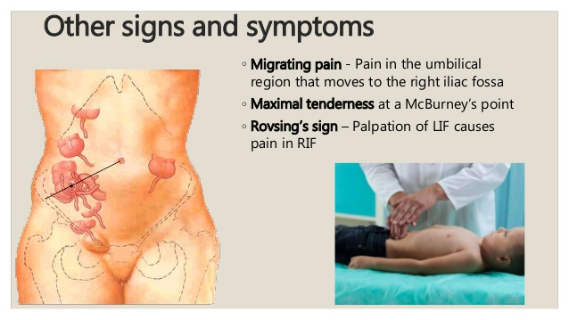How to Know Appendicitis Pain, The Symptoms And Treatment ...